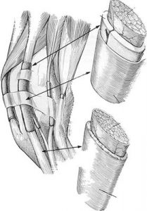 Illustration of the equine tendons and how they are arranged.