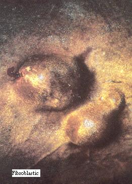 Example of Fibroblastic sarcoid